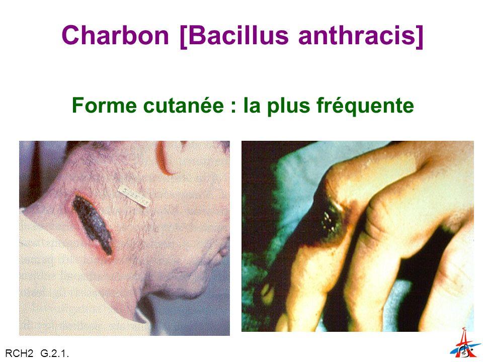 Charbon [Bacillus anthracis]
